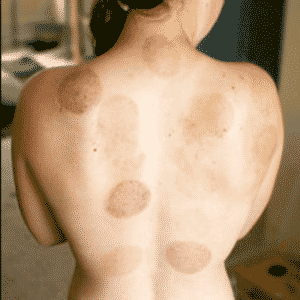 woman with multiple bruises on back